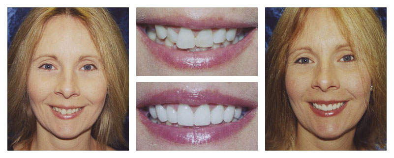 An actual case study showing before and after treatment with our Naperville IL Dentist