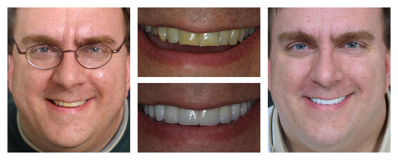 Before and after case study from Dr. Lakota in Naperville, IL.