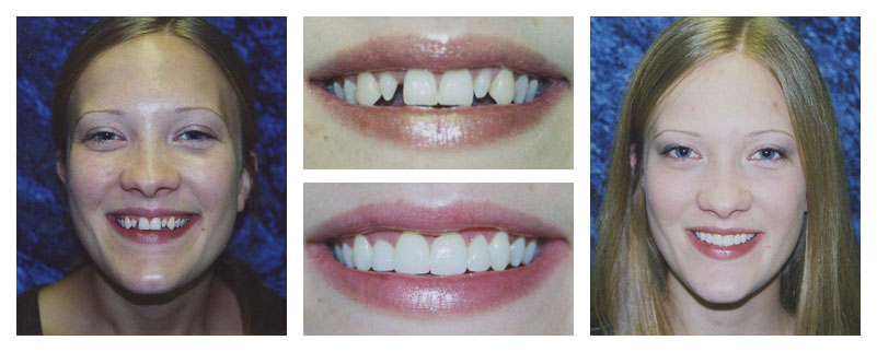 smile-gallery3